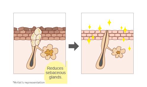 皮脂腺そのものに直接アプローチして皮脂分泌を抑える