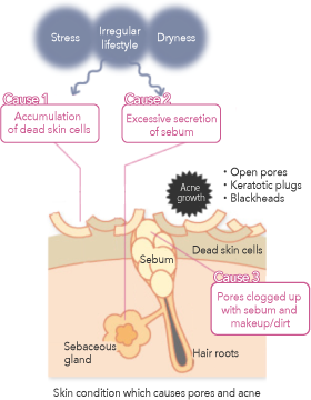 Skin condition which causes pores and acne