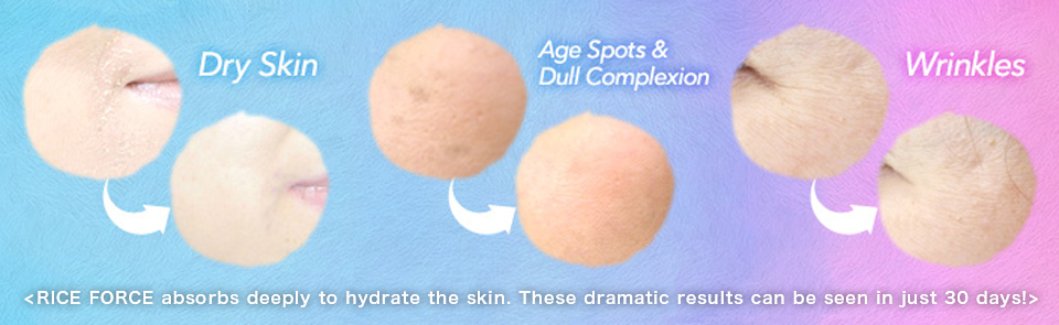 < RICE FORCE absorbs deeply to hydrate the skin. These dramatic results can be seen in just 30 days! >